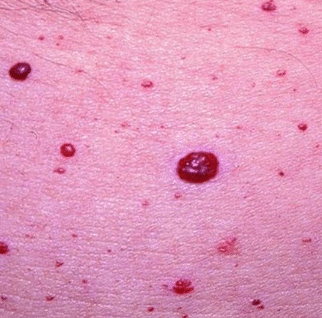 red blood spots on skin