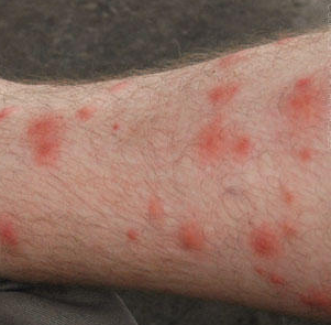 red blotches on legs