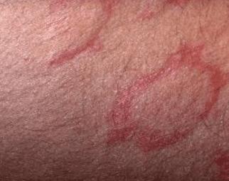 red circles on skin