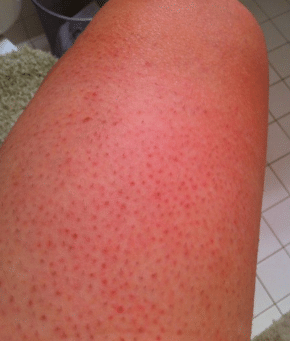 red spots on thighs