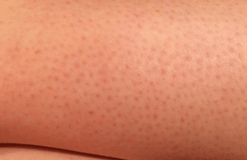 small red dots on legs