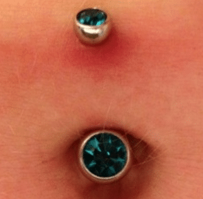 How to reduce belly button piercing pain