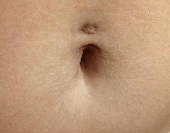Navel piercing scar