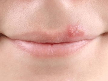 Bump on my upper lip