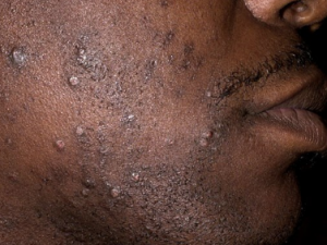 how to get rid of red bumps skin on face
