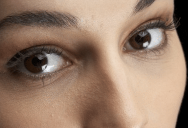 get rid of under eye lines