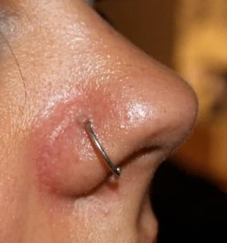 nose piercing healing