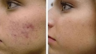 Chemical peel needed for acne scars