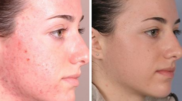 Chemical peel to get rid of acne scars