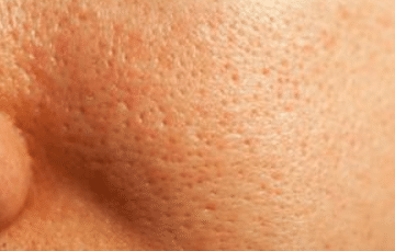 Large pores on face causes