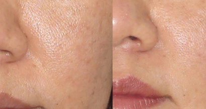 How to minimize large pores on face