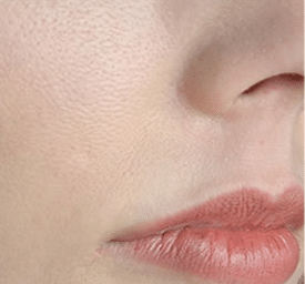 How to reduce large pores on face