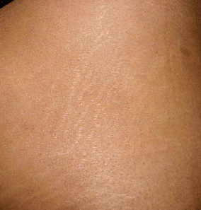 Causes of stretch marks on buttocks