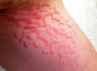 Stretch marks on thigh and buttocks
