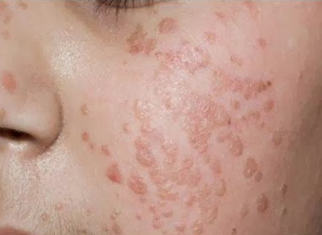 Warts on face causes