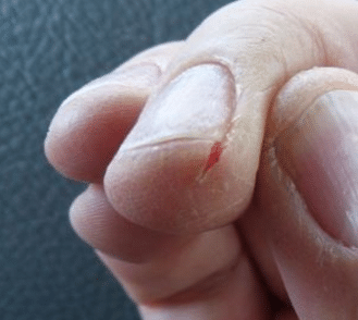 Causes of cracked skin on fingers