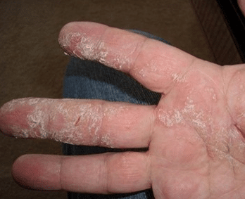 Cracked skin on fingers causes