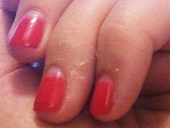 Cracked finger nail skin causes