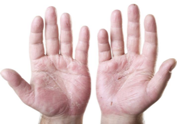 Dry cracked hands causes