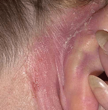 Dry skin behind ears causes
