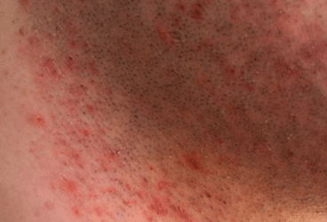 Itchy skin after shaving causes