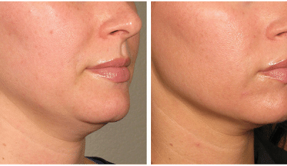 Non surgical neck lift procedure