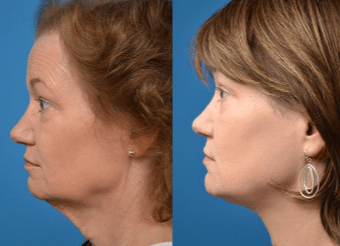 Neck lifting surgery