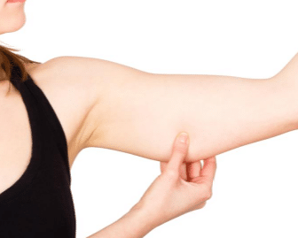 How saggy skin happens after weight loss