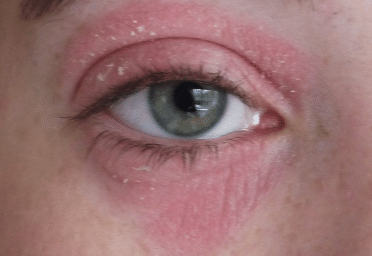 Red dry skin around eyes