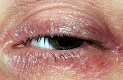 Dry skin on eyelid causes